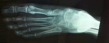 Quanto ganha um Ortopedista?